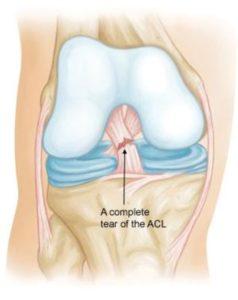 bolest kolene - poškození vazu kolene
